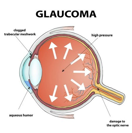 Mechanism of Glaucoma